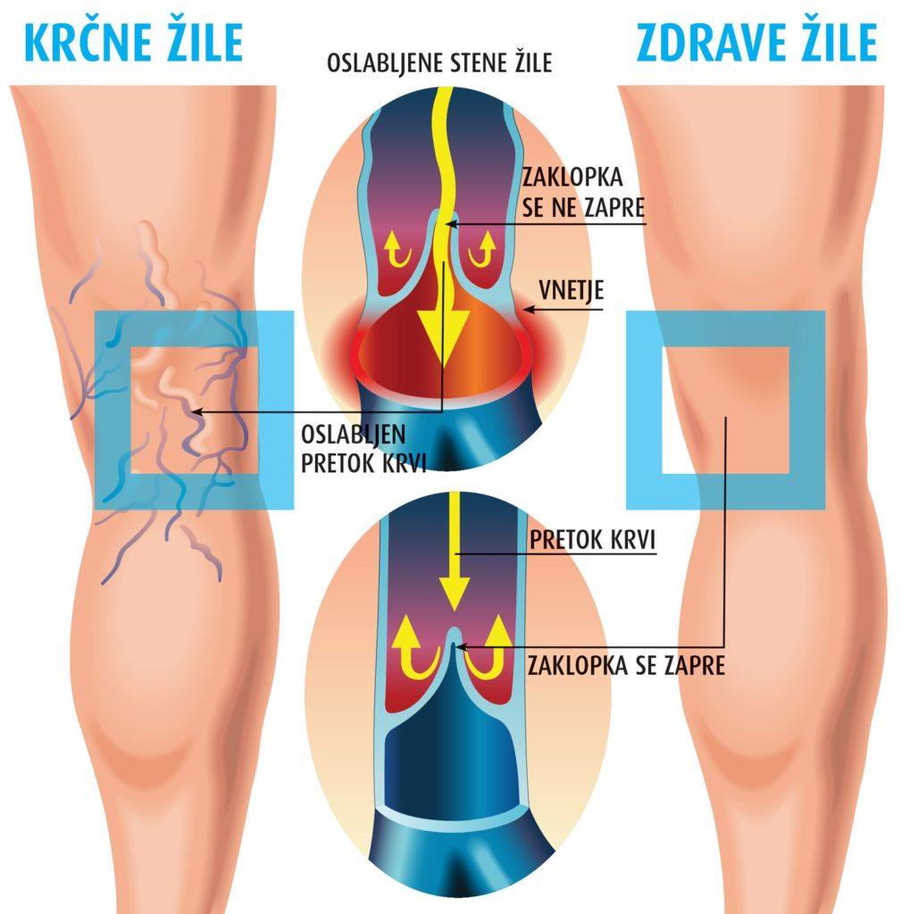 Krčne žile in zdrave žile
