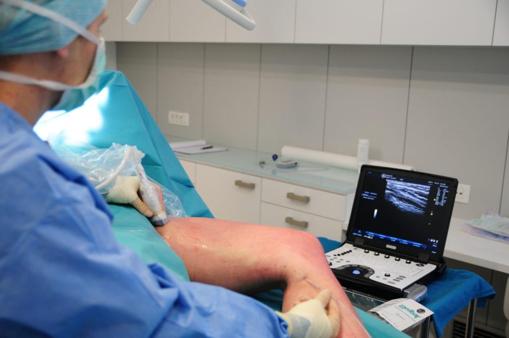 Laserski poseg krčnih žil