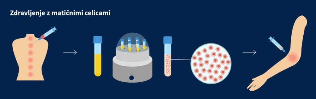 Biološko zdravljenje z matičnimi celicami