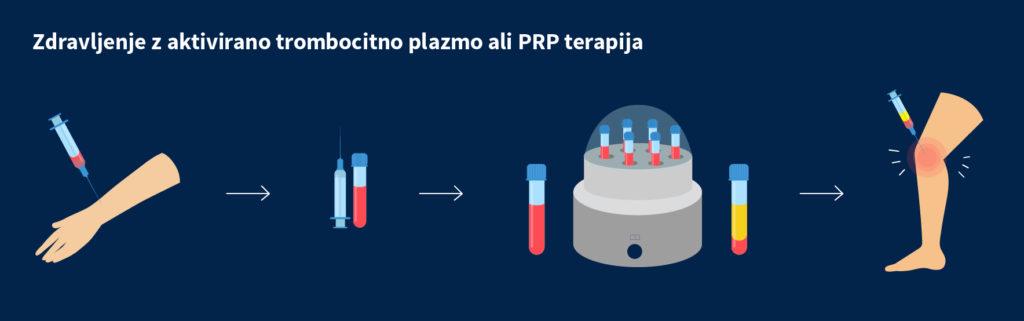 Biološko zdravljenje s trombocitno plazmo