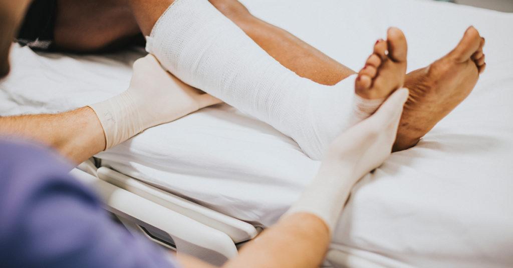 Krčne žile - povita noga