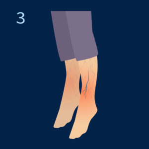 Tip krčnih žil 3