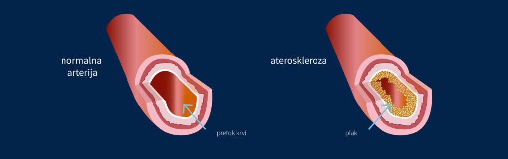 Srčno žilne bolezni: Ateroskleroza