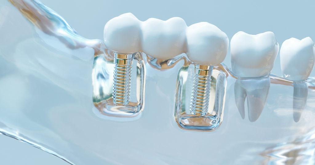 Zobni vsadki ali zobni implantati