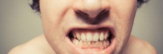 Zobni kamen in odstranjevanje zobnega kamna
