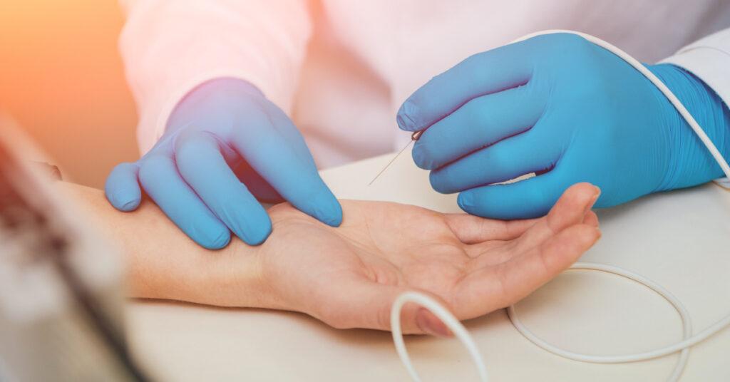 Elektromiografija (EMG)