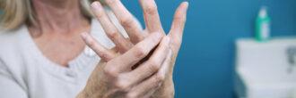 Pregled pri revmatologu: Zaradi kakšnih vrst bolečine dobimo napotnico in kdaj je nujen?