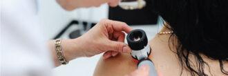 Dermatološki pregled: Kdaj je potreben?