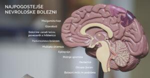 Najpogostejše nevrološke bolezni